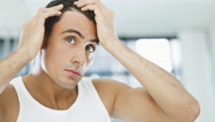 Трехмерная печать поможет в борьбе с мужским облысением